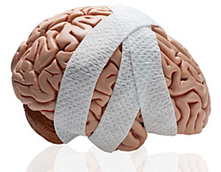 brain-injury